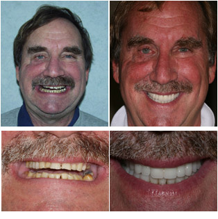 Irwin - Full Mouth Reconstruction with Crowns and Veneers