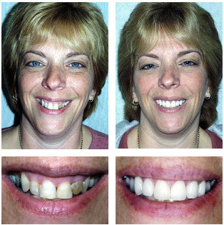 Tery - Porcelain Veneers and All Porcelain Crowns
