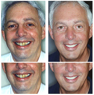 Nick - Full Mouth Reconstruction with Porcelain Veneers and Implant Crowns