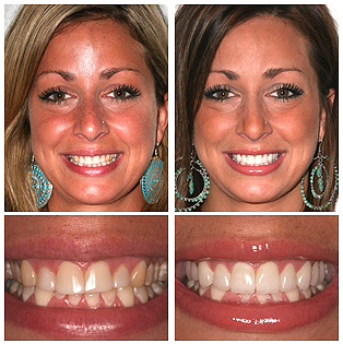 Mia - Smile Makeover with Porcelain Veneers