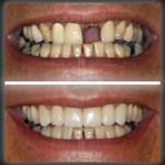 beautifulsmilesnj_dental_bridge