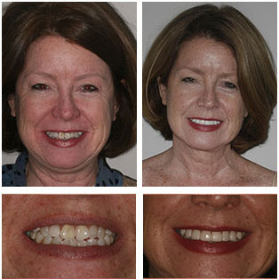 Barbara- Smile Makeover with Porcelain Veneers